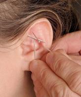 Akupunktúra a prosztatitis kezeléséből